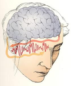 Mozek tóny spojí a vytvoří vjem nazvaný binaurální rytmus
