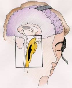 Spojen�m zvukov�ho vstupu v mozku dojde ke vzniku binaur�ln�ch rytm�