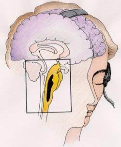 Spojením zvukového vstupu v mozku dojde ke vzniku binaurálních rytmů
